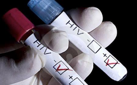 Институт од Хонг Конг е блиску до пронаоѓање лек против СИДА
