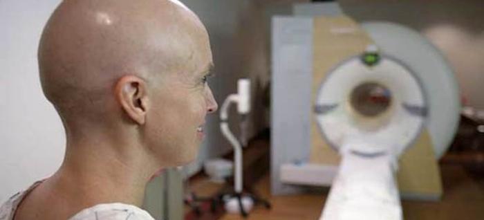 Здравиот живот не гарантира целосна превенција на рак, но…