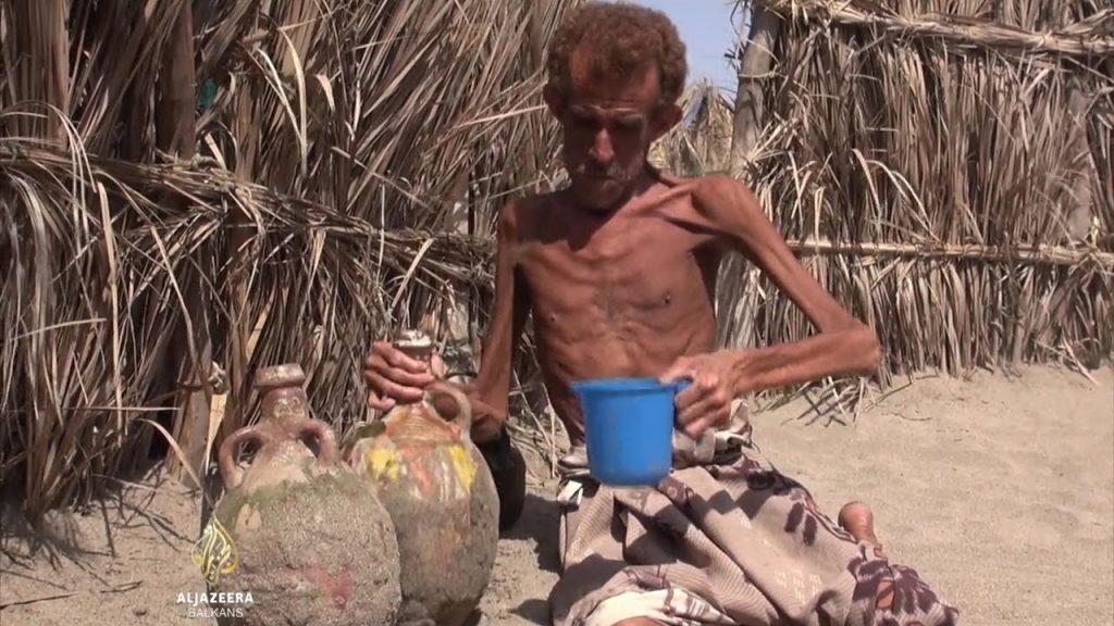 ОН: Во Јемен гладуваат 15, а може да станат и 20 милиони луѓе