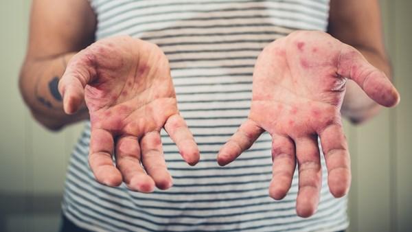 СЗО: Светот се справува со најлоша епидемија на сипаници во последната деценија