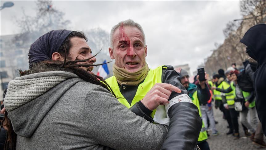 СТУДИЈА: Гумените топки на власта против Жолтите елеци без очи оставија многу Французи