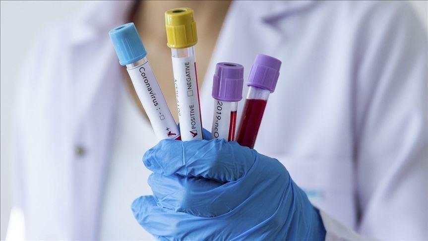КОВИД-19 НЕ СТИВНУВА: Шест починати, 147 нови регистрирани случаи
