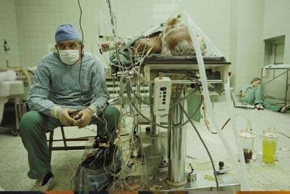 ЛЕГЕНДАРНА СЦЕНА ОД 1987 Г.: Полски хирург, сега починат, бдее над пациентот со трансплантирано срце, денес во длабока старост