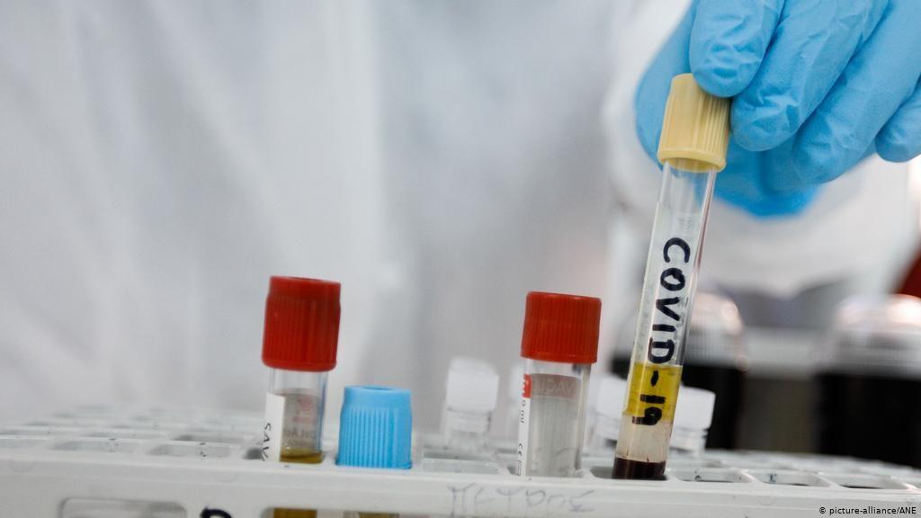 Истражување: Луѓето кои биле заразени од Ковид-19 не се целосно заштитени од повторна инфекција